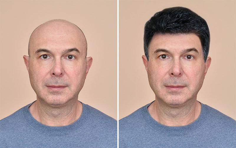 Oscar Hair Uygun Fiyatlı, Kaliteli Protez Saç Uygulamaları Yapıyor